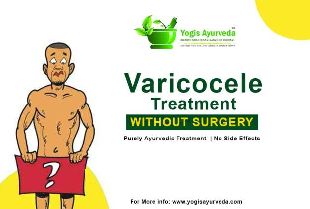 varicocele ayurvedic treatment medicine without surgery